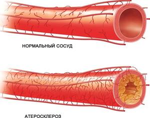Магнитотерапия при атеросклерозе сосудов головного мозга thumbnail