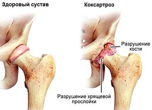 Артрит тазобедренного сустава у детей отзывы гокартроз коленного сустава