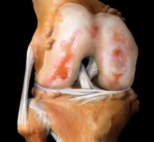 Алмаг при артрозе коленного сустава отзывы тутор на коленный сустав тутор-н